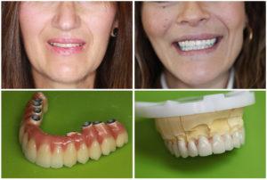 Bridge complet sur implant - Prothèse dentaire en Hongrie