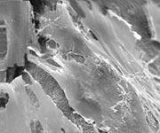 GREFFE OSSEUSE : structure de l'os vue au microscope