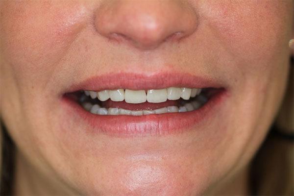 Facette Emax Hongrie - Photo sourire du patient