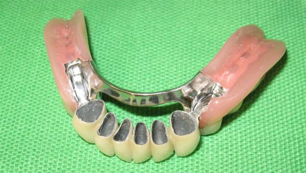 Prothèse avec attaches de précision - Mâchoire inférieure