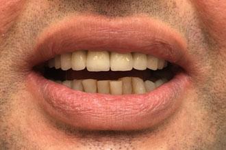 Tourisme dentaire Hongrie : Photos couronnes sur dents de devant