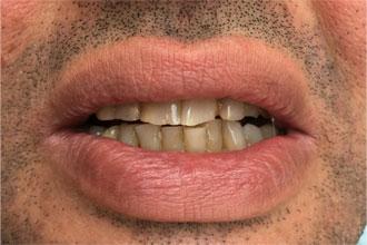 Tourisme dentaire Hongrie : Retrouver le sourire - Photos avant / Après traitement
