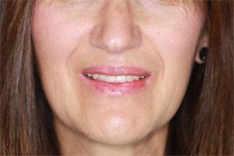 Prothèse dentaire Hongrie : Photo du sourire avec le bridge complet sur implant mâchoire supérieure