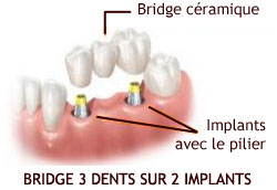 Bridge dentaire