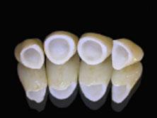 Tourisme dentaire Espagne : Bridge zircone