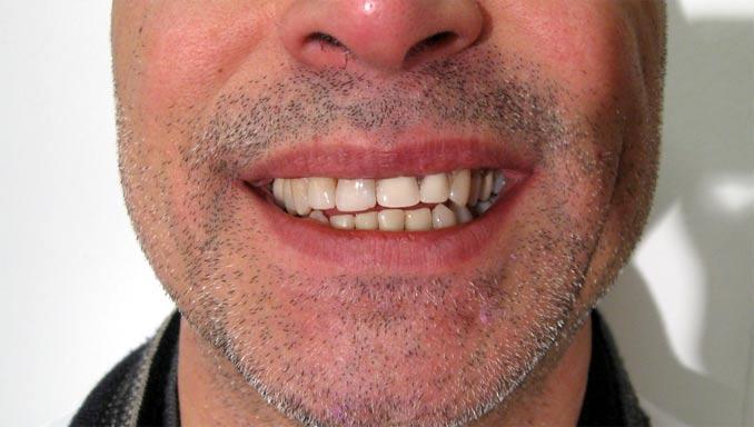 Sourire du patient avec un appareil provisoire après la chirurgie dentaire en Hongrie