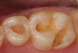 Dent cariée avant composite dentaire