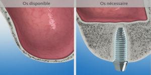 Chirurgie dentaire en Hongrie : Greffe osseuse au sinus