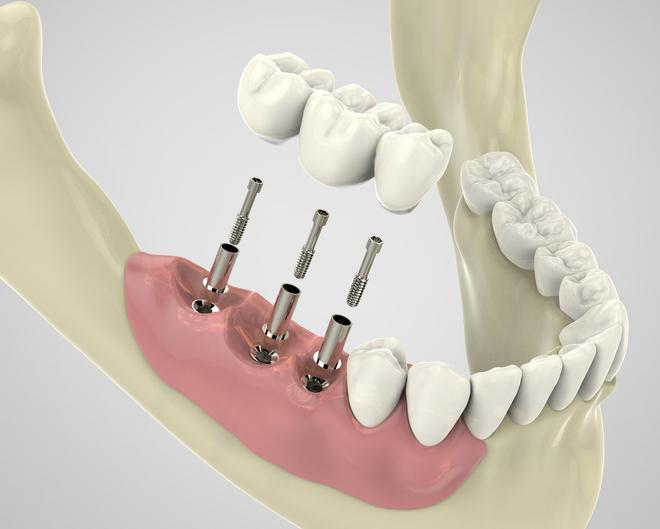 Remboursement implant dentaire et soins dentaires par la mutuelle