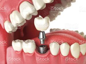 Implant dentaire à l'étranger : Endurance vous accompagne