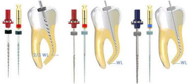 Dévitalisation : Les outils utilisés par le dentiste pour dévitaliser la dent