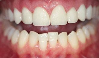 Photo avant après blanchiment des dents - Après