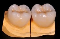 Couronne dentaire Hongrie céramique zircone