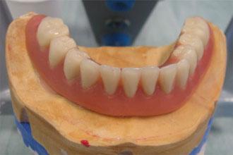 Ma prothèse dentaire : appareil amovible