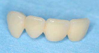 Prothèse dentaire : La couronne zircone
