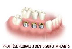Prothèse dentaire plurale