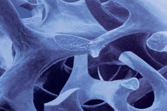 Structure osseuse en biomatériau pour implant dentaire vue au microscope - 1