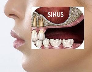 Chirurgie dentaire Hongrie : la greffe au sinus