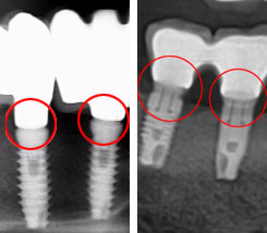 Bridge sur implant : ajustement