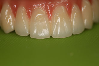 Bridge complet implant maxillaire dents devant