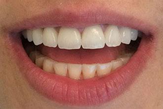 Couronne zircone - Photo sourire et dents avant après