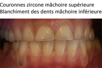 Couronne zircone - Photo sourire et dents avant