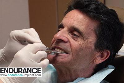 Prothèse amovible : Le travail du dentiste