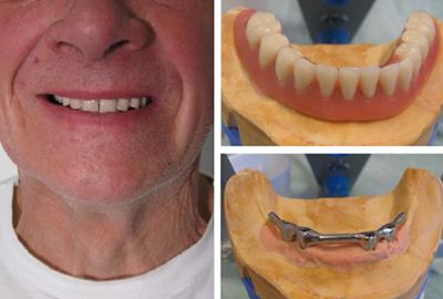 Prothèse clipsée sur implant