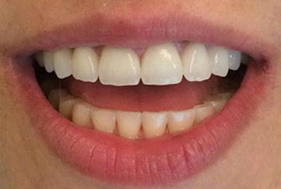 Prothèse sur dent