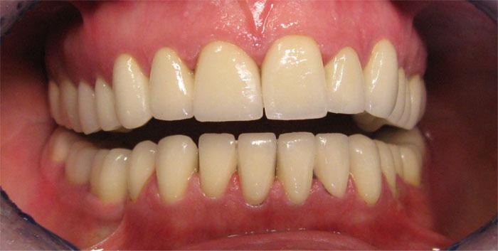 Photos avant après : Dentition après les couronnes dentaire Hongrie pour refaire toutes les dents