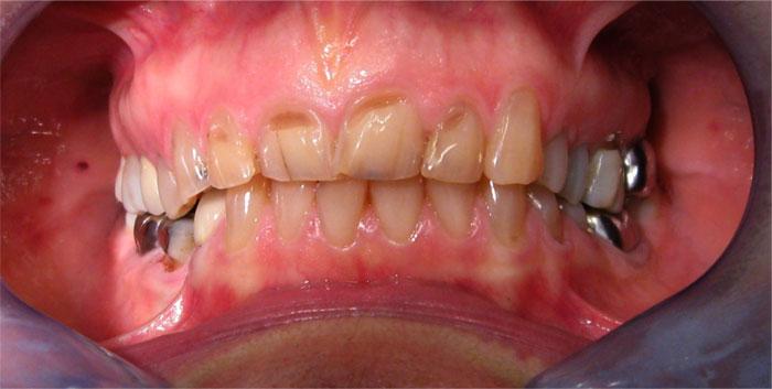 Photos avant après : Dentition avant les couronnes dentaire Hongrie pour refaire toutes les dents