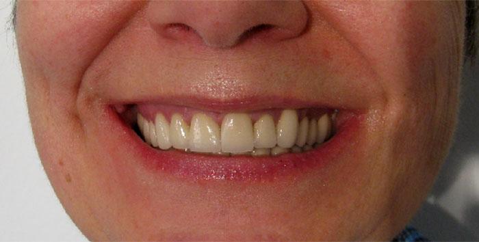 Photos avant après : Sourire après les couronnes dentaire Hongrie pour refaire toutes les dents