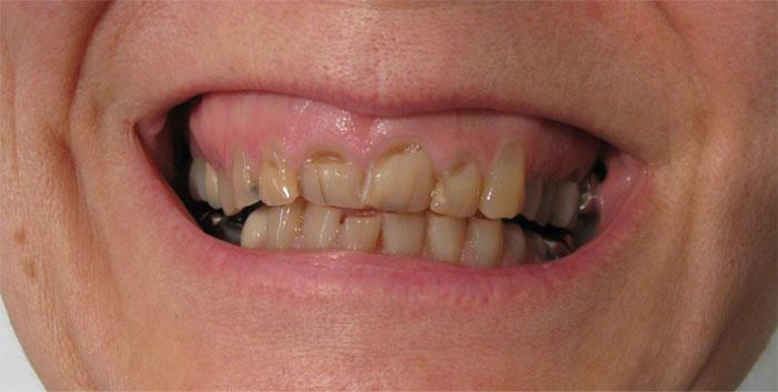 Photos avant après : Sourire avant les couronnes dentaire Hongrie pour refaire toutes les dents