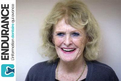 Vidéo : le travail du dentiste pour la prothèse clipsée sur implants