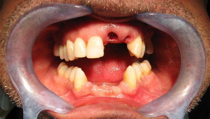 Photo après extraction de dents