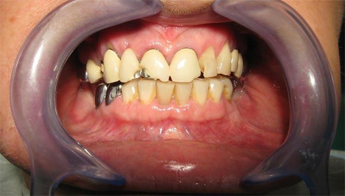 Etat des dents avant le traitement prothétique