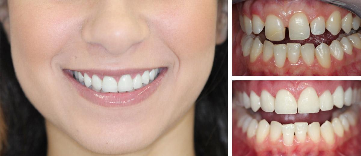Photo sourire couronne EMAX en Hongrie