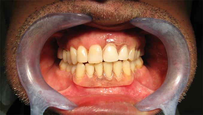 Photo avec prothèse provisoire dents devant