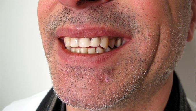 Sourire avec dents provisoires amovibles
