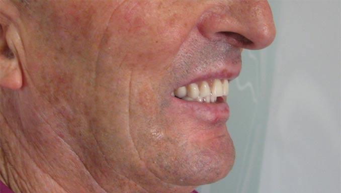 Photos du sourire, vu de droite, avec prothèse complète amovible