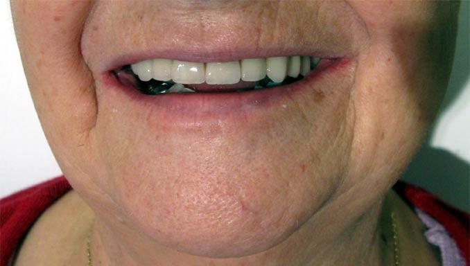 Sourire après la pose du bridge dentaire céramo-métallique