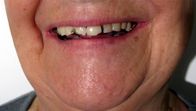 Sourire avant bridge dentaire céramo-métal