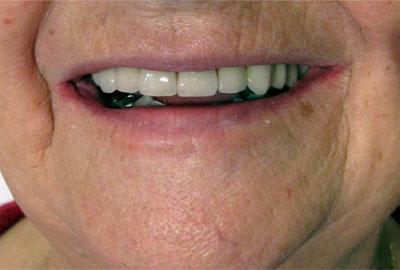 Photo du sourire avec bridge ceramo-métal