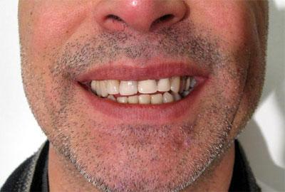 Photo sourire avec prothèse provisoire partielle amovible