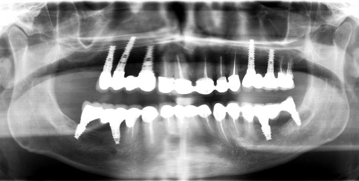 Radio après les soins dentaires en Hongrie